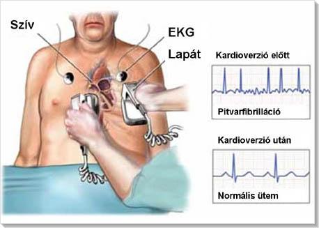 magas vérnyomás elleni abláció)