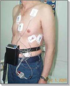 Holter magas vérnyomást eredményez